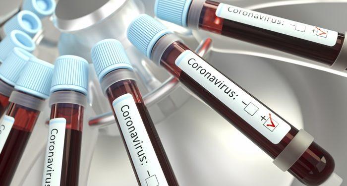 Juazeiro do Norte tem segunda cura de paciente com Coronavírus, afirma Arnon